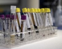 Минздрав сообщил о новых случаях коронавируса COVID-19 — срочные новости