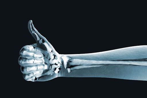 content_how_to_improve_bone_health-5119107