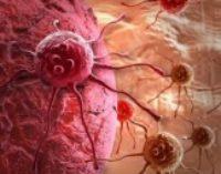 5 самых распространенных видов рака и их симптомы